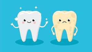 Les expressions de dents